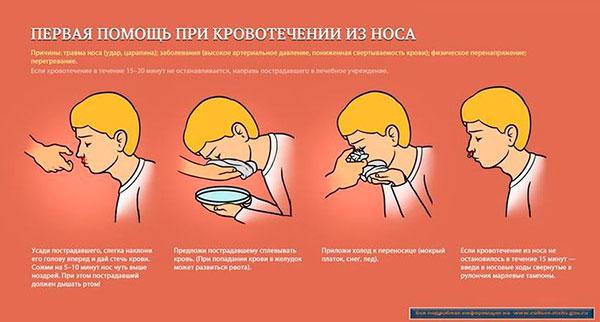 Носовое кровотечение. Причины. Первая помощь при носовых ...