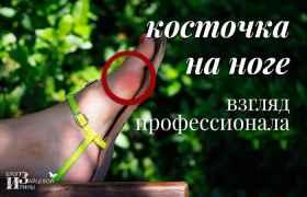 /kostochka-na-bolshom-palce-nogi-kostochka-na-noge.html