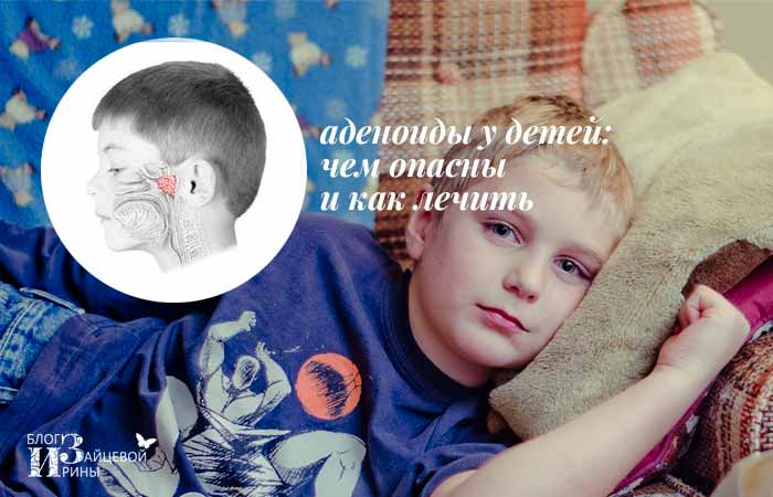 /adenoidy-u-detej.html