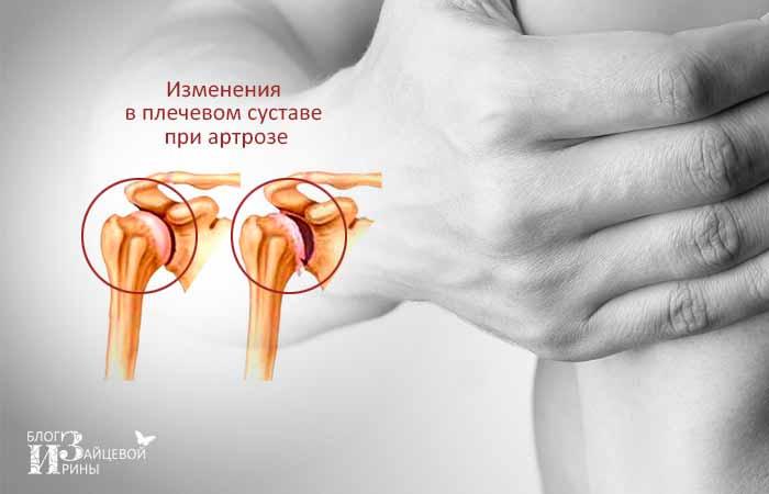 изменения в плече при артрозе