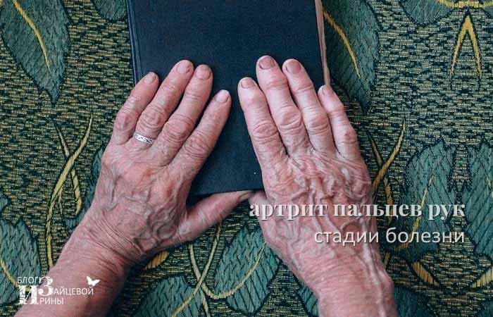стадии артрита кистей и пальцев