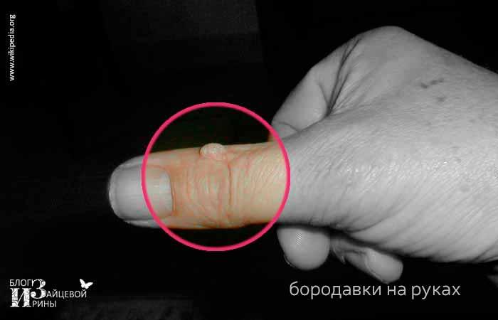 Бородавки на руках фото 1