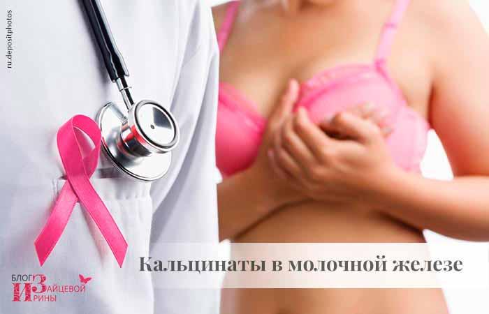 Кальцинаты в молочной железе