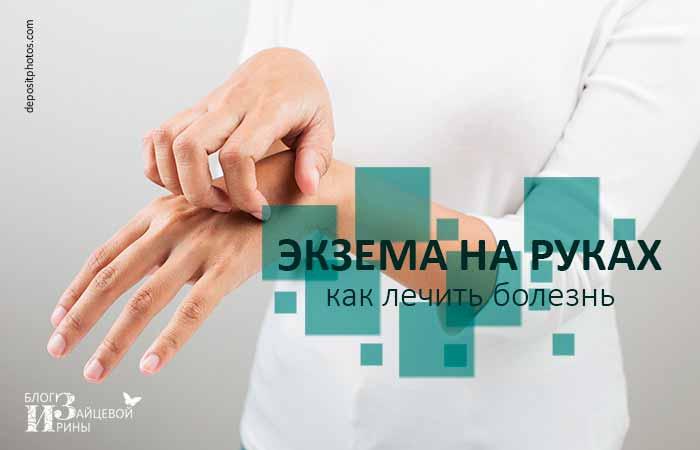 Экзема на руках. Как лечить болезнь