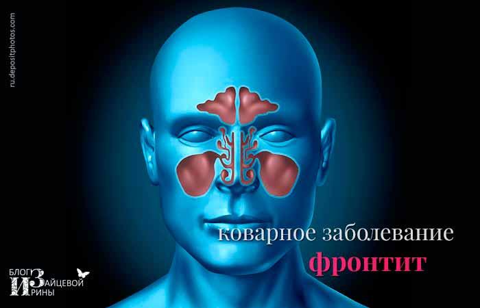 Коварное заболевание фронтит