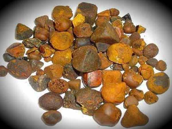 Как растворить камни в желчном в домашних