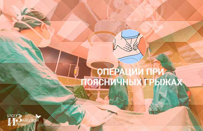 операции при поясничных грыжах
