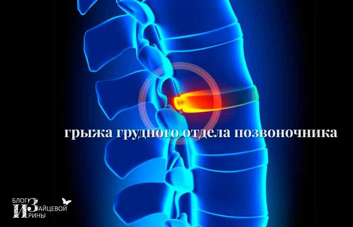 Температура при грыже грудного отдела позвоночника
