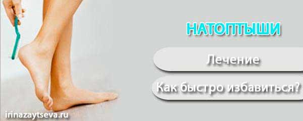 saharniy-diabet-otek-nog-lechenie