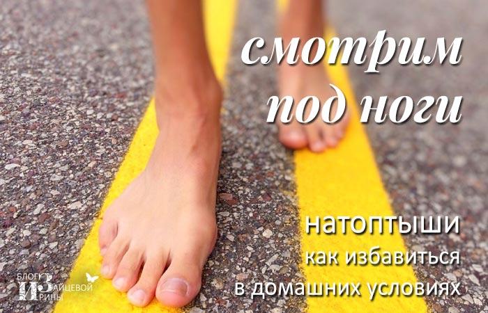 Натоптыши на ногах. Как избавиться от натоптышей в домашних условиях