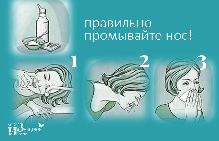 Промывания носа в домашних условиях