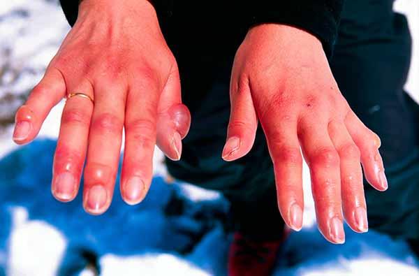 Симптомы обморожения