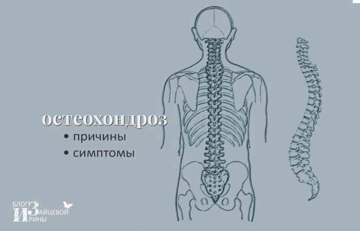 причины остеохондроза поясничного отдела