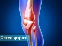 Лечение остеоартроза суставов. Практические рекомендации