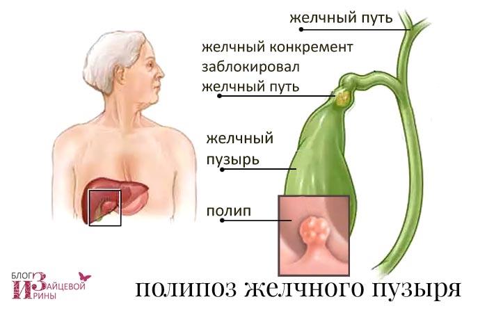 Полипоз желчного пузыря. Симптомы. Причины. Лечение