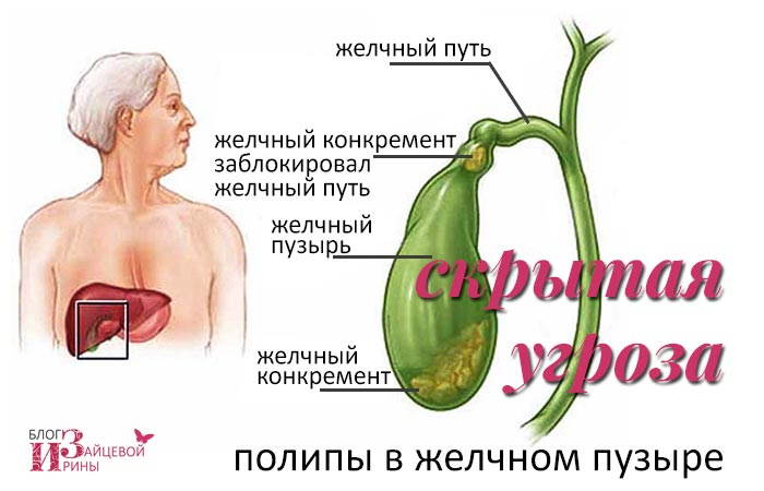 Полипы в желчном пузыре. Лечение