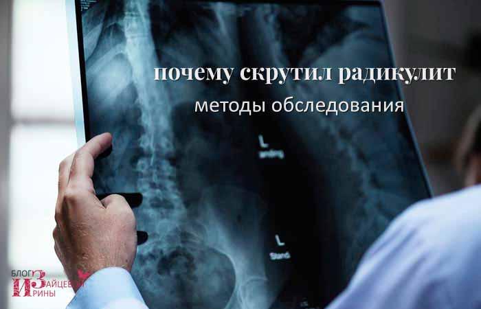 диагностика радикулита