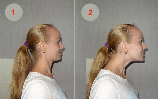 Профилактика шейного остеохондроза упражнения