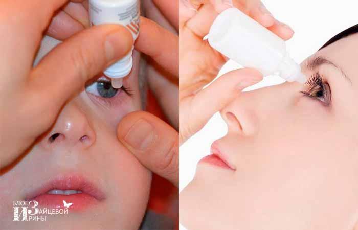 лечение слезоточивости глаз