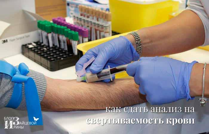 Как сдать анализ на свертываемость крови