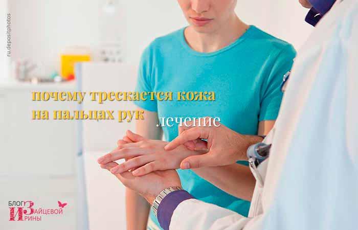 Лечение трещин на руках