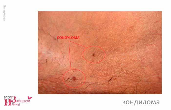 вирус папилломы человека фото 1