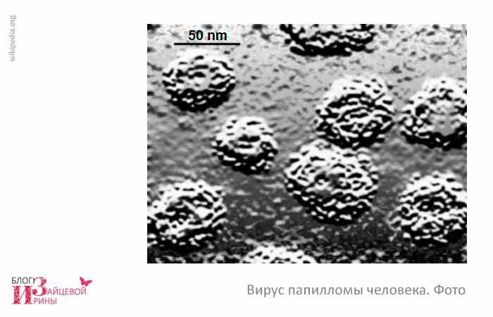 вирус папилломы человека фото 2