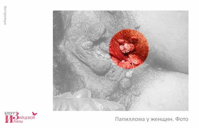 вирус папилломы человека фото 4