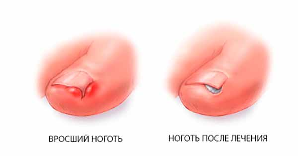 Как бороться с вросшими ногтями на ногах