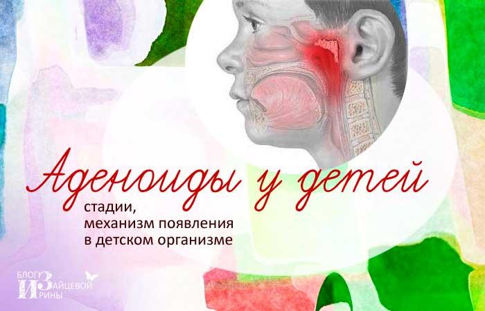 Аденоиды у детей симптомы фото
