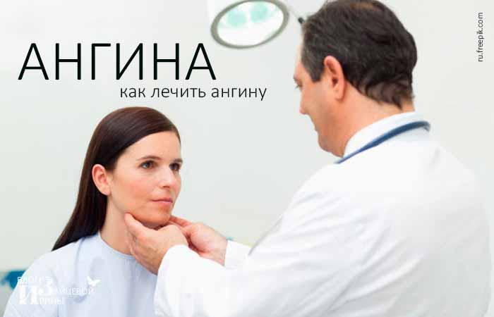 Лечение ангины