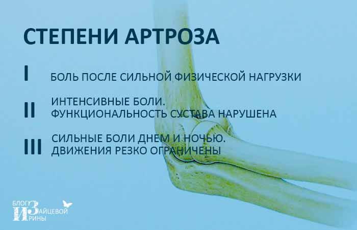 Степени артроза локтевого сустава