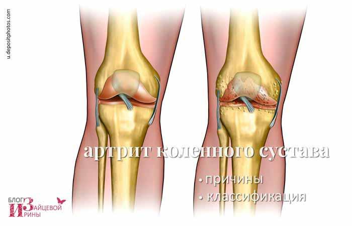 Артрит коленного сустава к какому врачу обращаться доа коленного сустава лечение