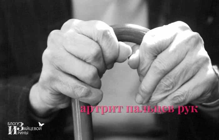 Артрит пальцев рук. Симптомы и лечение | Блог Ирины Зайцевой
