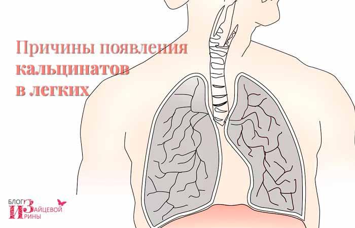 Причины появления кальцинатов в легких