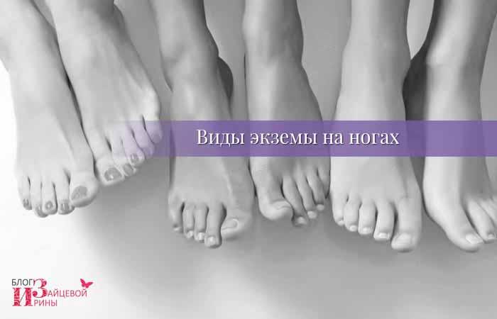 Виды экземы на ногах
