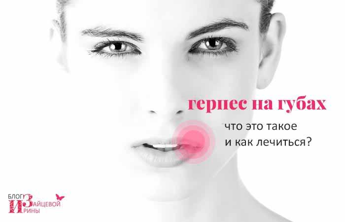 Герпес на губах. Как вылечить герпес на губах быстро