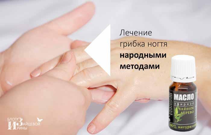 Лечение грибка ногтя народными методами