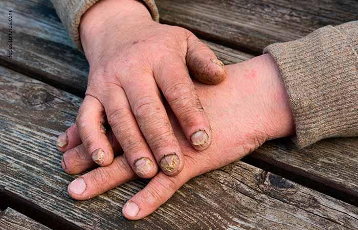 грибок ногтей на руках фото 3
