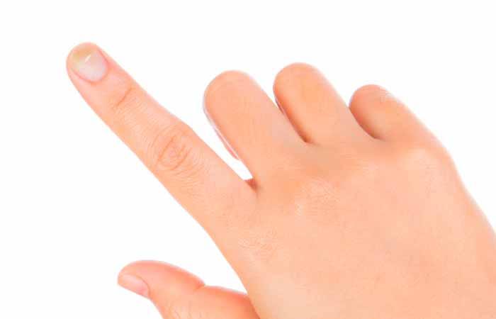 грибок ногтей на руках фото 1