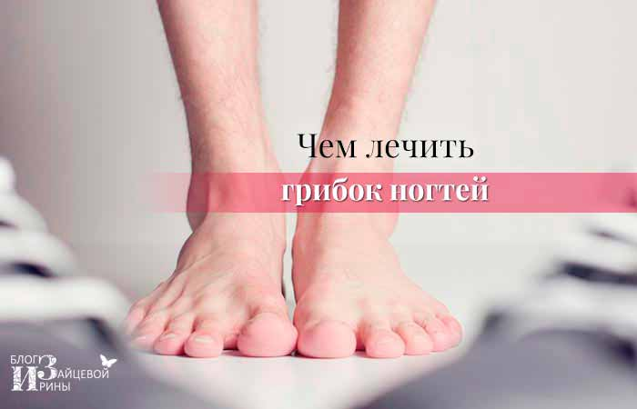 Грибок ногтей на ногах: признаки, симптомы и его лечение