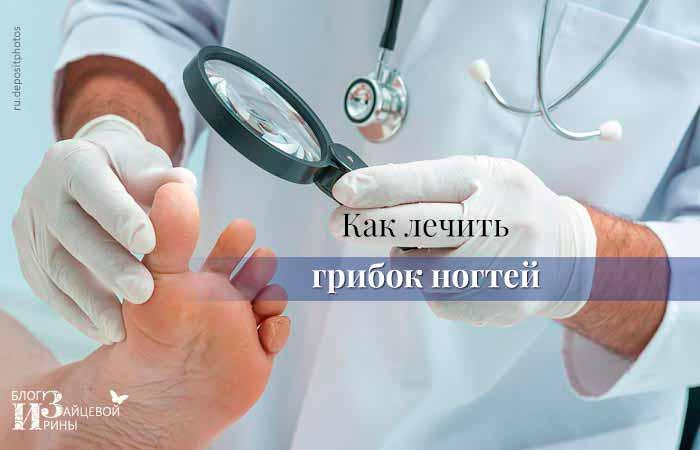 лечение грибка ногтей