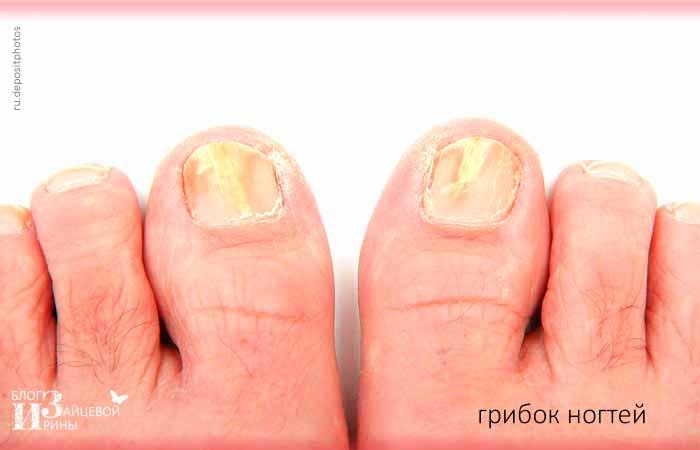 фото грибка ногтей