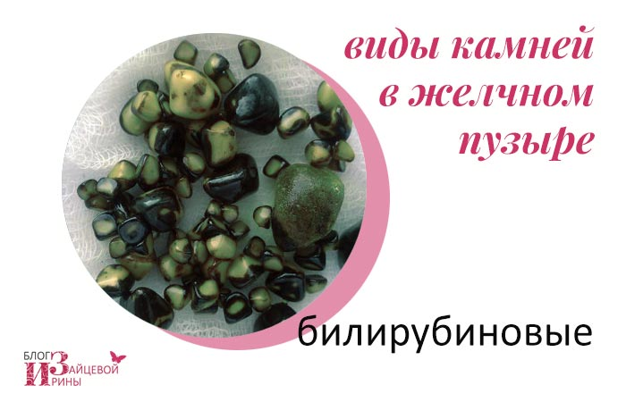 Какие бывают камни в желчном пузыре? Фото камней | Блог Ирины Зайцевой