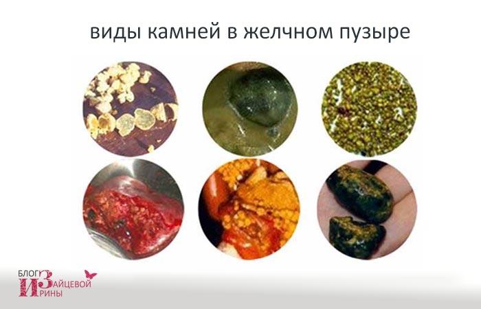 Лечение камней в желчном пузыре без операции | Блог Ирины Зайцевой