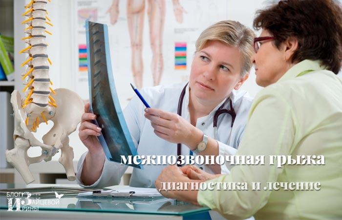Лечение межпозвоночной грыжи