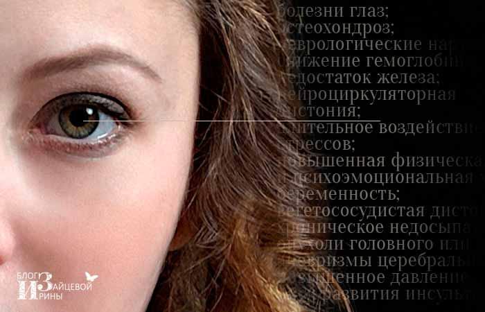 симптомы мушек перед глазами