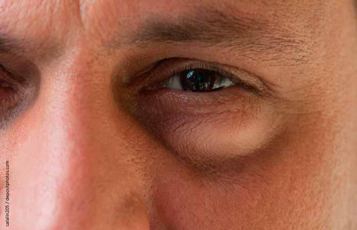Отеки под глазами фото 4