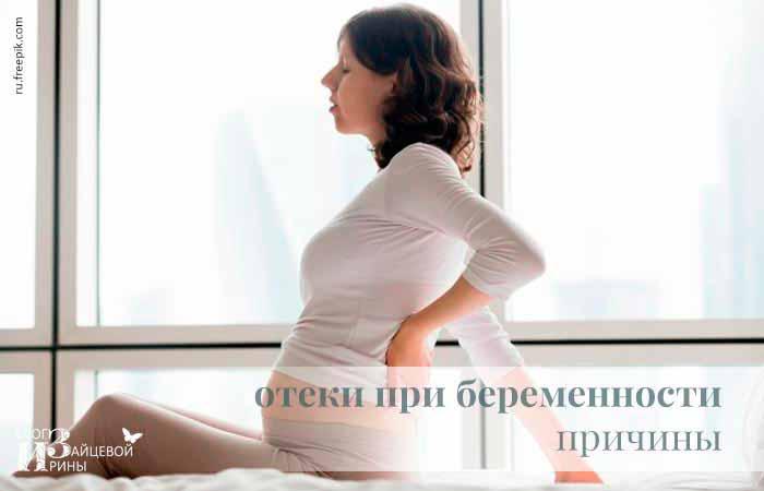 Почему отекают ноги при беременности