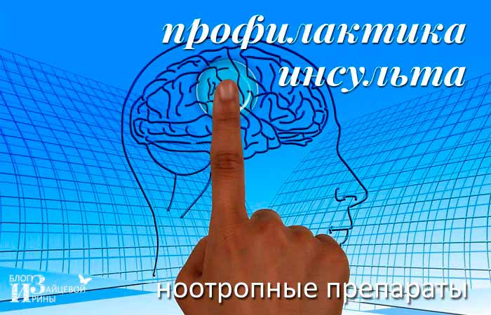 Профилактика инсульта. Ноотропные препараты | Блог Ирины Зайцевой
